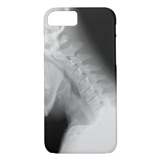 Jaw and Spine X Ray iPhone 7 case