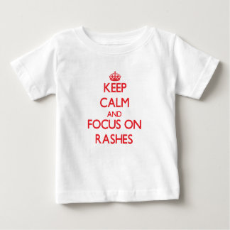 Keep Calm and focus on Rashes Tees