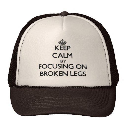 Keep Calm by focusing on Broken Legs Trucker Hat