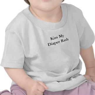Kiss My Diaper Rash Tshirts