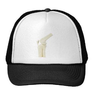Knee joint model of human leg trucker hat
