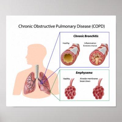 copd respiratory disease paper