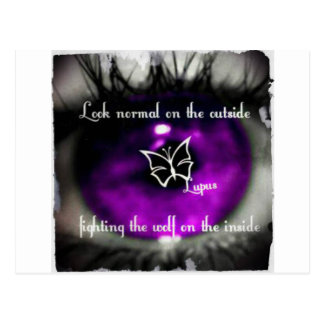 lupus eye22.jpg postcard
