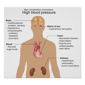Main Complications of High Blood Pressure Chart