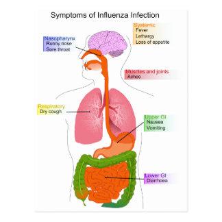 Main Symptoms of an Influenza Infection Diagram Postcard