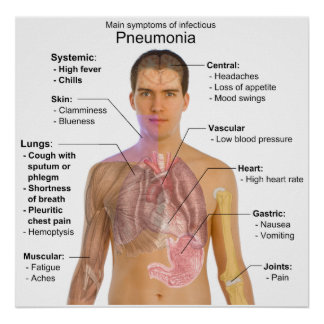 Main Symptoms of Infectious Pneumonia Diagram Poster
