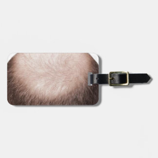Male Pattern Baldness Luggage Tag