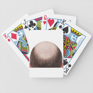 Male Pattern Baldness Poker Deck