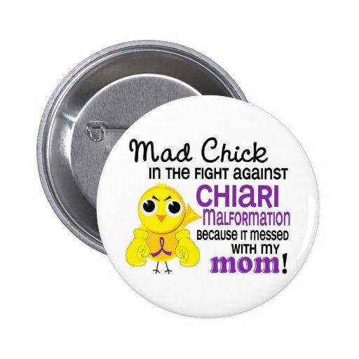 Malformation folle de Chiari de maman du poussin 2 Badges Avec Agrafe
