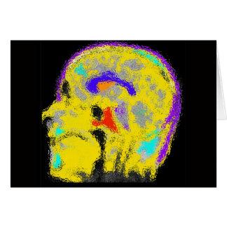 Mark's colorized MRI Card
