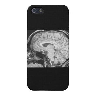 Mid-sagittal MRI iPhone 5 Cover