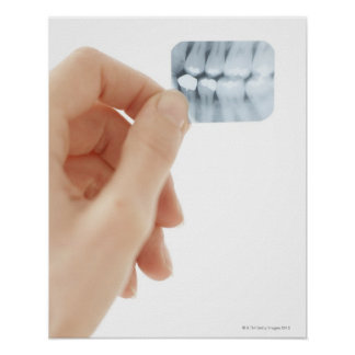 MODEL RELEASED. Dental X-ray. Poster