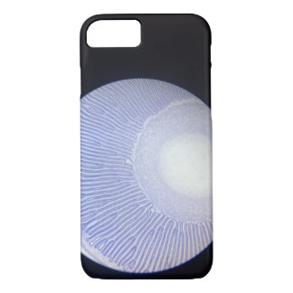 mushroom under microscope iPhone 8/7 case