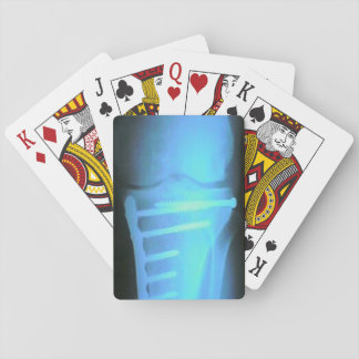 Need a Break? Playing Cards