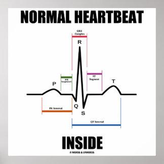 Normal Heartbeat Inside ECG EKG Electrocardiogram Poster