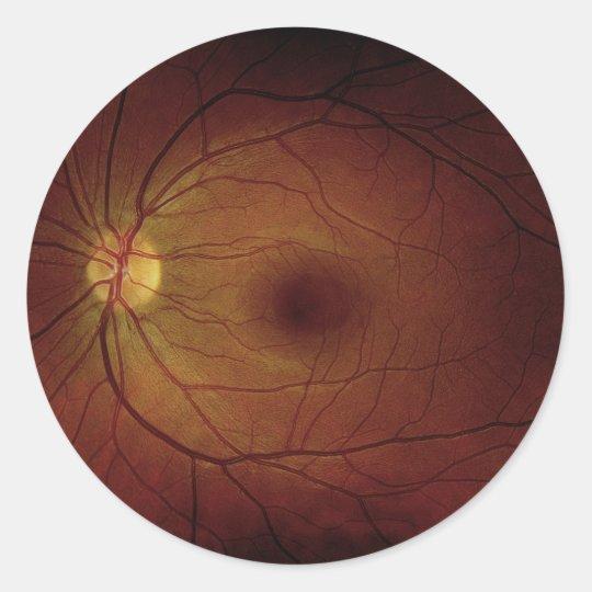Optic Nerve Sticker