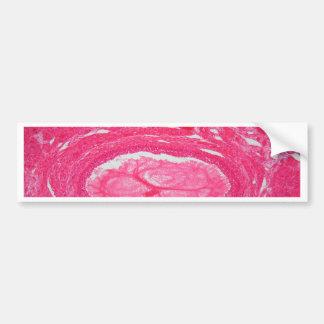 Ovary tissue under the microscope. bumper sticker