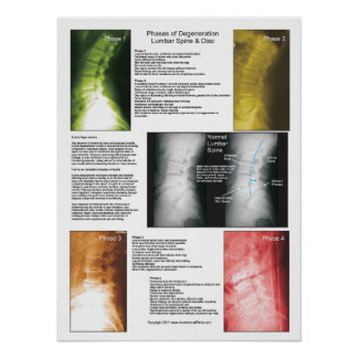 Phases Lumbar Spinal Degeneration Poster
