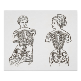 Physical Impact of Wearing Corsets Medical Print