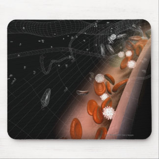 Plaque in the arteries mouse pad