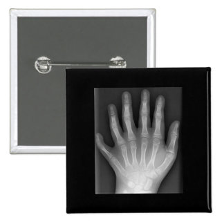 Polydactyly, Six Fingered Hand, X-Ray, rarity! 2 Inch Square Button