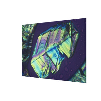 Progesterone crystals canvas print