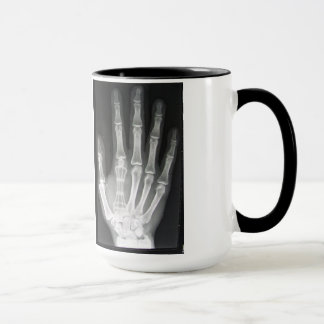 Queen in the Hand X-ray Mug