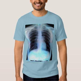 Ribcage X-ray Shirt radiology