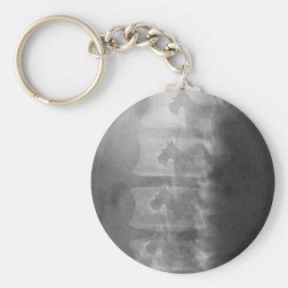 scottie dog syndrome basic round button keychain