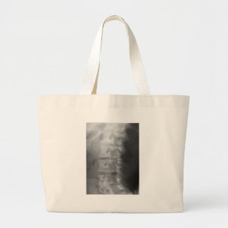 scottie dog syndrome large tote bag