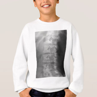 scottie dog syndrome sweatshirt