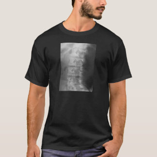 scottie dog syndrome T-Shirt