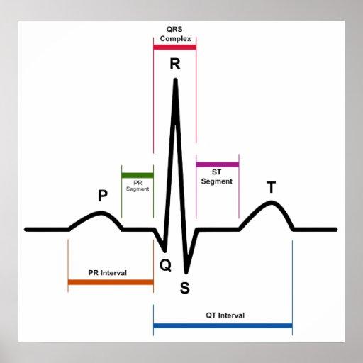 Sinus Rhythm in an Electrocardiogram ECG Diagram Print