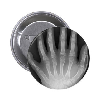 Six Fingered Hand, Medical Rarity, X-Ray 2 Inch Round Button