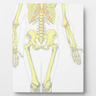 Skeleton Plaque
