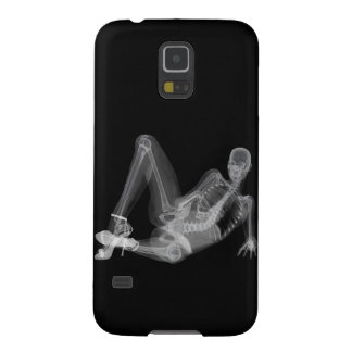 Skeleton woman sexy radiography galaxy s5 covers