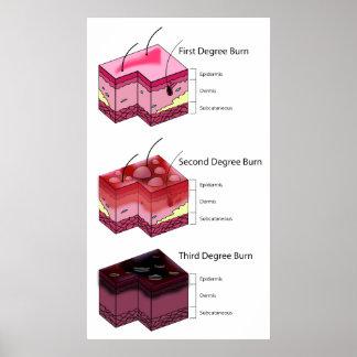 Skin Burn First Second & Third Degree Diagram Poster