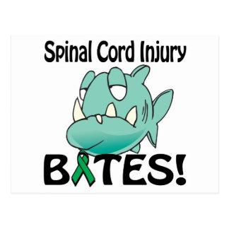 Injury Postcards, Injury Post Card Templates