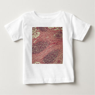 Stomach cancer cells under the microscope. baby T-Shirt