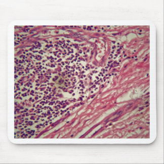 Stomach cancer cells under the microscope. mouse pad