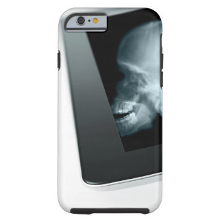 Studio shot of tablet with x-ray of tough iPhone 6 case