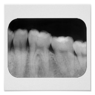 Teeth with filling poster
