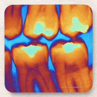Teeth with fillings (green), coloured X-ray. Drink Coasters