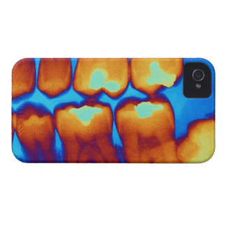Teeth with fillings (green), coloured X-ray. iPhone 4 Case-Mate Case