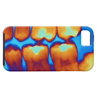 Teeth with fillings (green), coloured X-ray. iPhone 5 Case