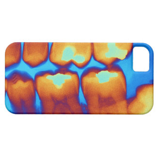 Teeth with fillings (green), coloured X-ray. iPhone 5 Covers