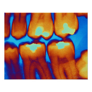 Teeth with fillings (green), coloured X-ray. Poster