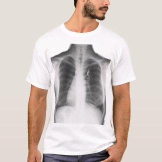 Tent Envy x-ray T T-Shirt