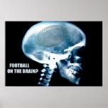Tête du football (rayon X) Posters