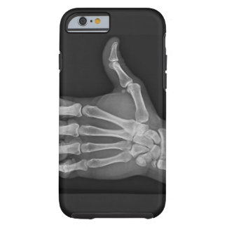 Thumbs up iPhone 6 case
